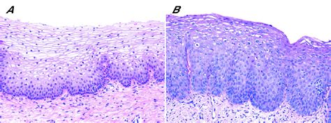 Our approach to squamous intraepithelial lesions of the