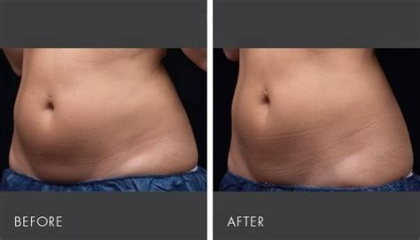 Perfect Body Laser and Aesthetics: Non-Surgcial Body