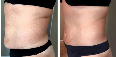 Fat Reduction Before & After   Spartanburg, SC   Ultra