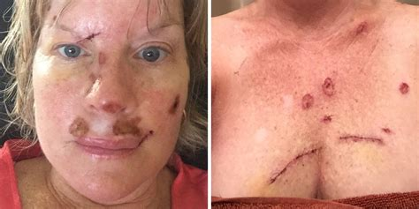 Woman With Skin Cancer Shares Graphic Post-Op Photos To