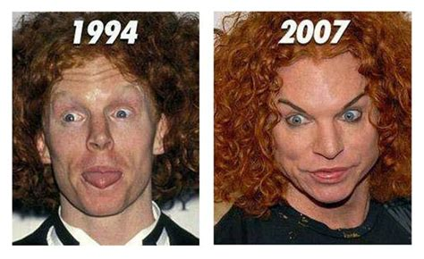 Funny Pictures: Celebrity before and after plastic surgery