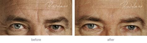 Restylane before and after gallery | eyes, lips, cheek